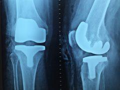Kiedy najczęściej zgłaszamy się do ortopedy?